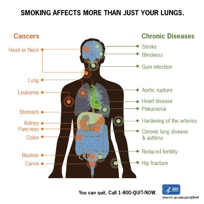 CDC Smkg affects more than lungs.jpg